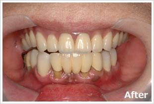 義歯aアフター